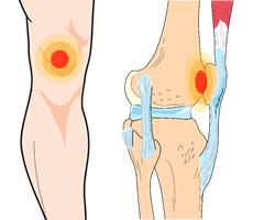 artrose knie en hardlopen